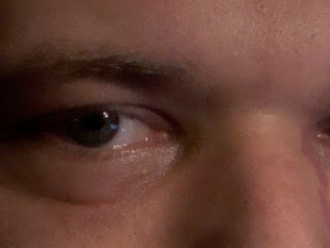 Here is a closer look, so you can get a better idea of the puffiness and dark circles he had been trying to deal with.