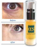 Instant Eye Tuck & Dark Circle Treatment