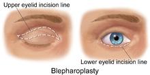 Blepharoplasty-EyeLift