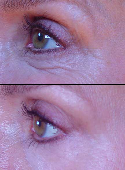 What Aging Does To Your Eyes Easy Eye Solutions